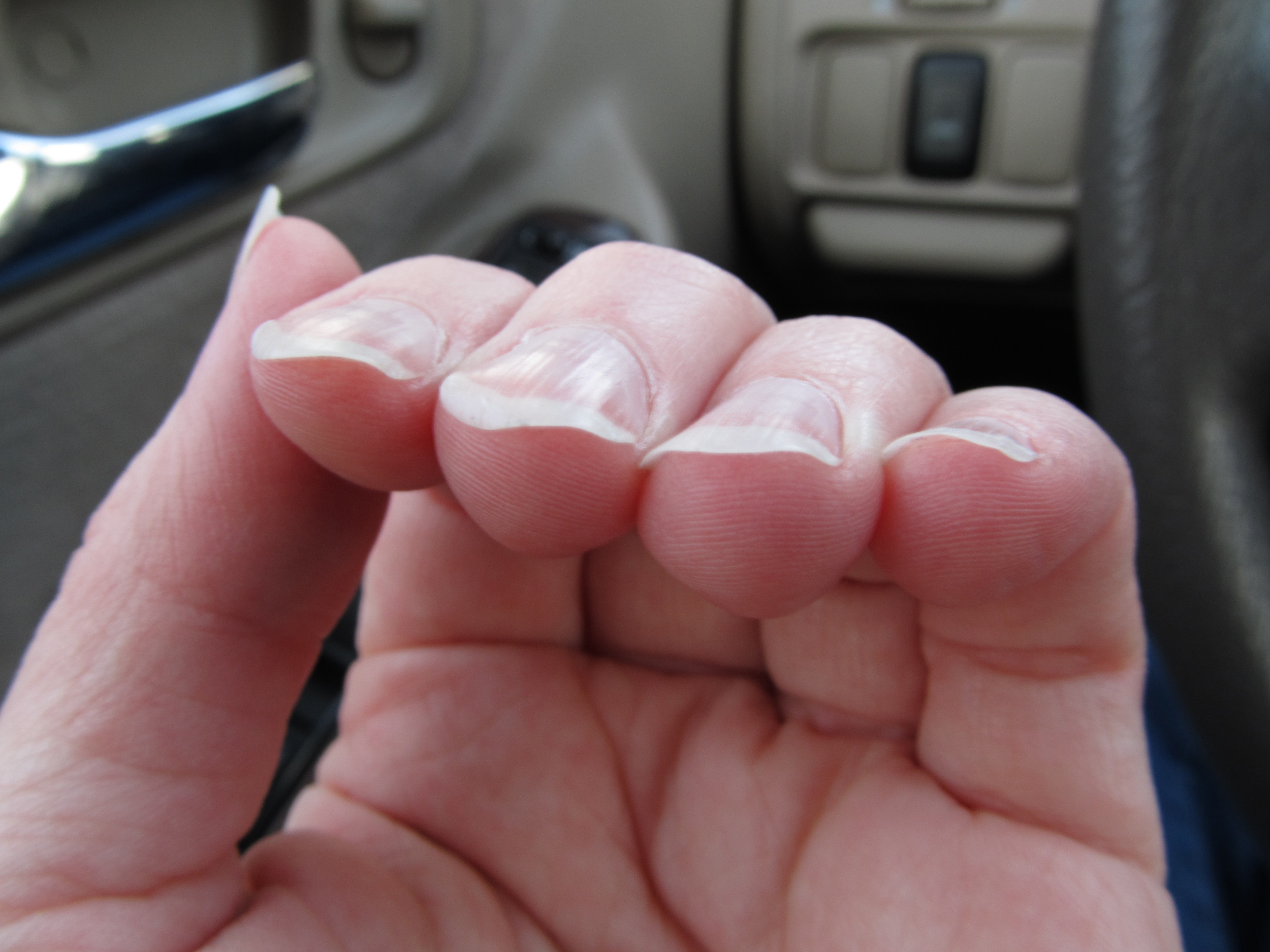 Why Do My Fingernails Curl Down